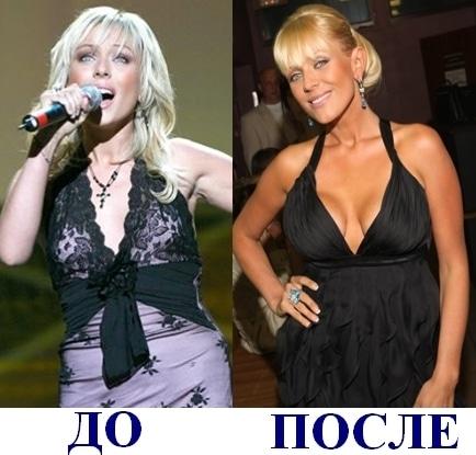 Юлия Началова до и после пластических операций