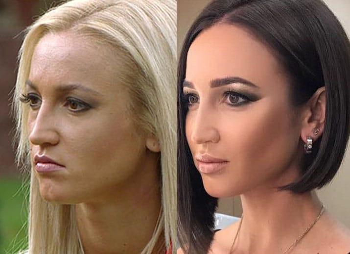 Ольга Бузова до и после пластической операции и смены цвета волос