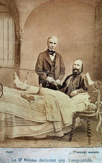Николай Пирогов оказывает помощь раненому Гарибальди