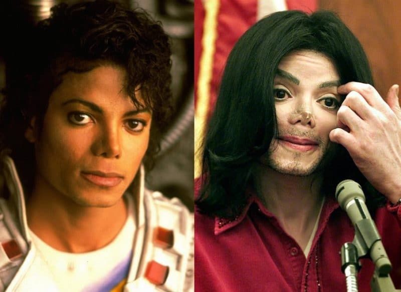 Пластика Майкла Джексона