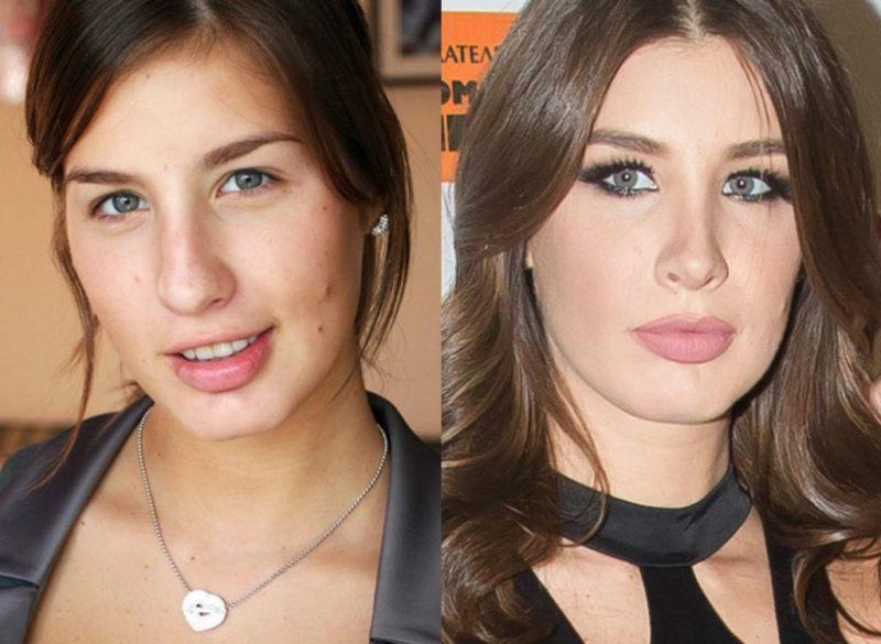 Кэти Топурия до и после пластики