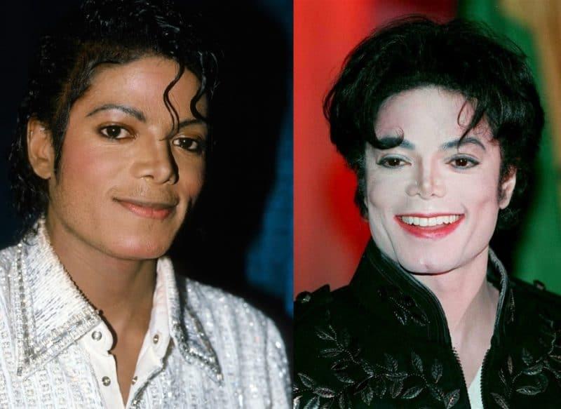 Майкл Джексон до и после операции